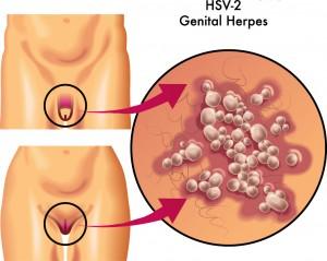 herpes symptomer